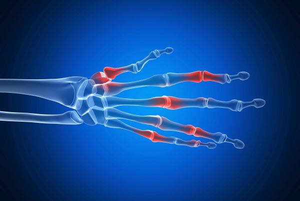 reumatoid-artritisz